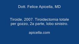 Total Thyroidectomy