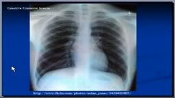 Chest x-ray interpretation, Lateral view