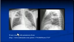 Chest x-ray Interpretation -Cavitating lesions