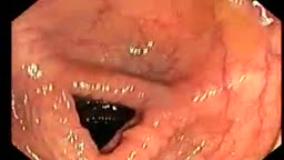 Colonoscopy showing diverticuli
