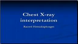 Chest x-ray -- Raised Hemidiaphragm