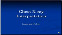 Chest x-ray interpretation -- Tubes and lines