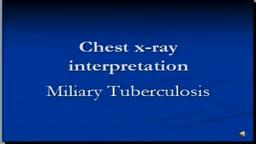 Chest x-ray interpretation-- Miliary Tuberculosis