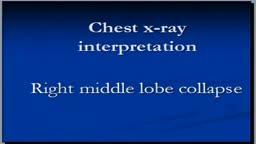CHest x-ray interpretation --Right middle lobe collapse