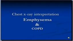 Chest x-ray interpretation -- COPD and Emphysema