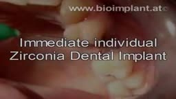 IMMEDIATE ROOT-ANALOG ZIRCONIA DENTAL IMPLANT
