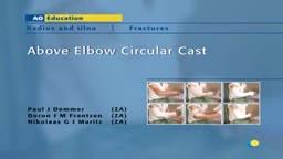 Above Elbow Circular Cast