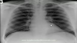 chest x-ray, artificial aortic and mitral valves