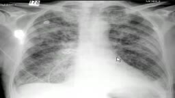 chest x-ray, pulmonary edema