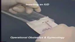 IUD removal