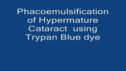 Hypermature cataract Phacoemulsification using Trypan Blue
