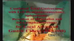Combined Complete Total Gastrectomy with Left Hemipancreatectomy