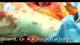 Knee Replacement Surgery Video