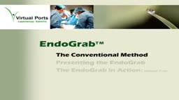 Laparoscopic procedures, EndoGrab (Virtual Ports)