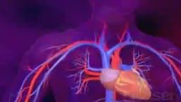 Systemic Lupus Erythematosus Animation