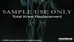 Total Knee Replacement Surgery Video