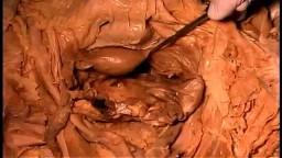 Anatomy of Split Pelvis