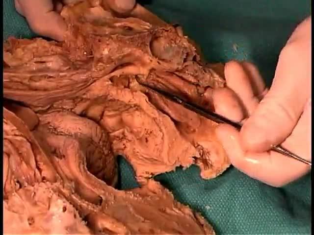 Anatomy of The Nasal Cavity and Sinuses