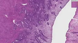 Histology of Proliferative Endometrium