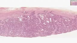 Histology of Prostate