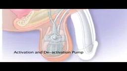 Scientifically Erectile Dysfunction Penile Implants