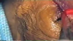 Eye Lid Jones Procedure