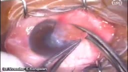 Pterygium Excision with Auto Conjunctival Graft
