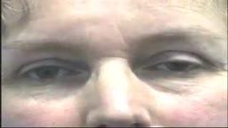 Abnormal Eye Lid Positions Ptosis