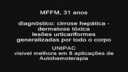 MFFM 31 years old treated with Auto-hemotherapy