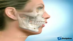 Dental Braces and Jaw Reconstruction