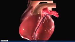 3D Heart Attack