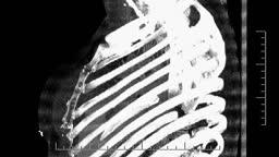 CT Chest - bone