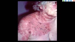 AUTO-HEMOTHERAPY IN HERPES CASES. THE STORY OF A DOCTOR IN FERME-NEUVE. CBC NEWS 1977
