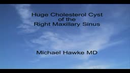 Endoscopic Removal of a Maxillary Sinus Cholesterol Cyst