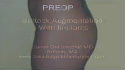 Gluteal (Buttock) Augmentation