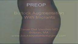 Gluteal (Buttock) Augmentation