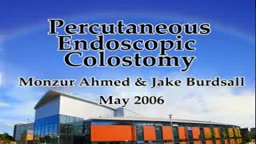 Percutaneous Endoscopic Colostomy