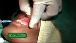 Nasolabial cyst excision