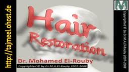 زراعة الشعر HAIR RESTORATION