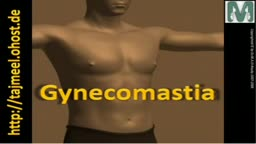 Gynecomastia تصغير الثدى للرجال Dr. M. El-Rouby د. الروبى