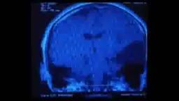 Brain Scans with Arachnoid Cyst