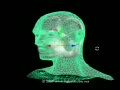 3D MRI Brain Anatomy