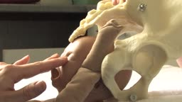 Mechanism of a Breech CHildbirth Delivery