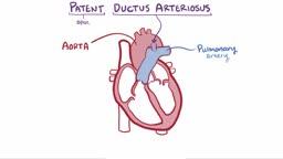 Patent ductus arteriosus (PDA)