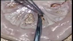 Mesenteric Vessel Ligation Operation