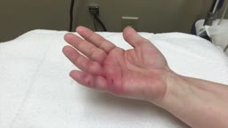 Infected Dog Bite