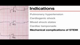 Pulmonary Artery Catheterization