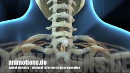 Spinal Stenosis Surgery