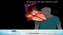 Rupture of the Heart Wall and Mitral Valve Replacement