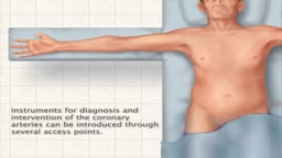 Transfemoral Cardiac Catheterization